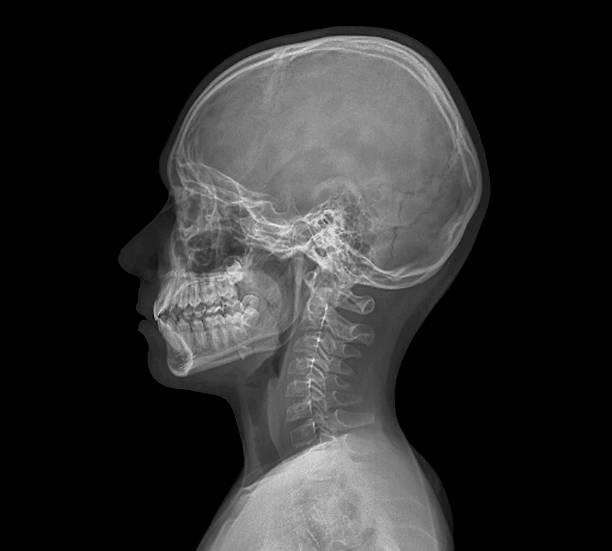 顎の成長を利用した治療が可能